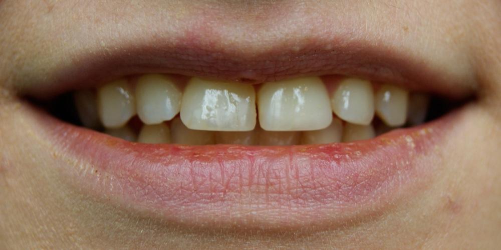 Убрать щель между зубами в домашних условиях 520