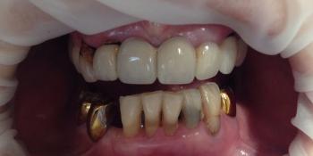 Результат протезирования зубов верхней и нижней челюсти фото до лечения