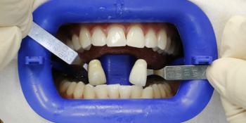 Результат отбеливание зубов системой Zoom 3 фото после лечения