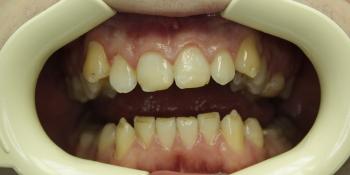 Реставрация зубов композитным материалом фото до лечения