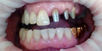 Замена металлокерамического мостовидного протеза фото до лечения