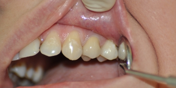 Зуб восстановлен металлической культевой вкладки и м/к коронки фото после лечения