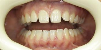 Устранение щели между передними зубами фото до лечения