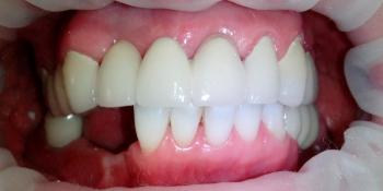 Изготовление металлокерамического мостовидного дугового протеза на верхнюю челюсть фото после лечения