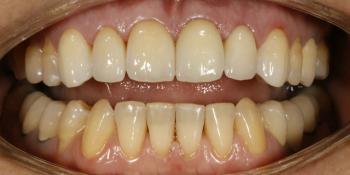 Преображение цвета и формы передних зубов фото после лечения