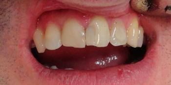 Реставрация зубов светокомпозитным материалом фото до лечения