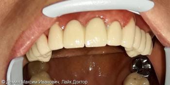 Установка трех сегментов металлокерамического мостовидного протеза фото после лечения