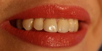 Керамические виниры E.max (импресс керамика) фото после лечения