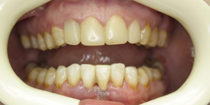Устранение подвижности зуба фото после лечения