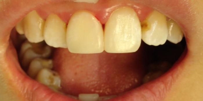 Лечение кариеса и реставрация композитным материалом фото после лечения