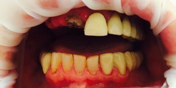 Результат протезирования металлокерамическими коронками, верхняя челюсть фото до лечения