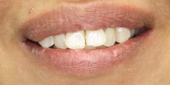 Восстановление зубов с установкой полупрямых композитных виниров Componeer фото до лечения