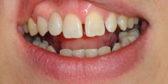 Реставрация зубов, адгезивный мост фото после лечения