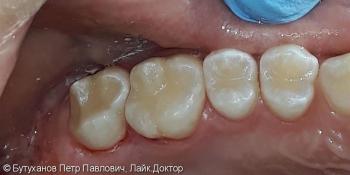 Проблема – кариес на четырех зубах фото после лечения