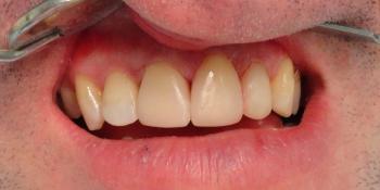 Реставрация зубов светокомпозитным материалом фото после лечения