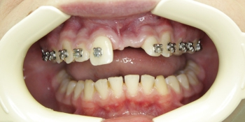 Восстановление зуба на стекловолоконной конструкции фото до лечения