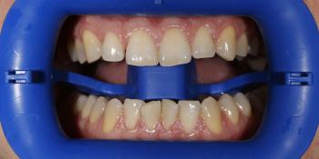 Проведена процедура отбеливания зубов Zoom 3 фото до лечения