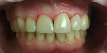Зубы восстановили композитным реставрационным материалом Estelite фото после лечения