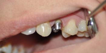 Зуб восстановлен металлической культевой вкладки и м/к коронки фото до лечения