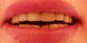 Результат протезирования металлокерамическими коронками, верхняя челюсть фото после лечения