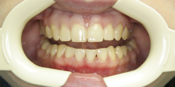 Устранение большой щели между зубами фото после лечения