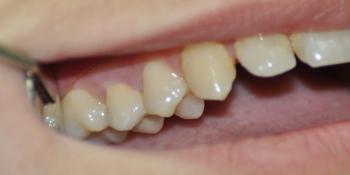 Восстановление коронки жевательного зуба фото после лечения