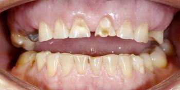 Восстановление верхних зубов керамическими коронками на основе диоксида циркония фото до лечения