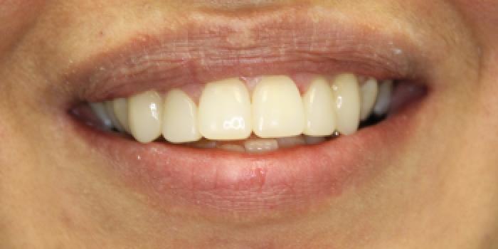 Восстановление зубов с установкой полупрямых композитных виниров Componeer фото после лечения