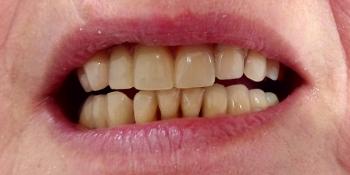 Протезирования зубов верней и нижней челюсти фото после лечения