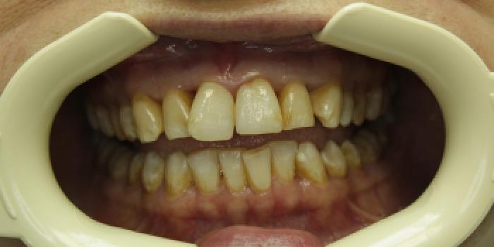 Восстановление зубов с установкой полупрямых композитных виниров фото до лечения