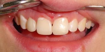 Исправление косметического дефекта передних зубов фото после лечения