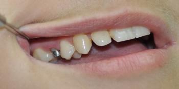 Восстановление коронки жевательного зуба фото до лечения
