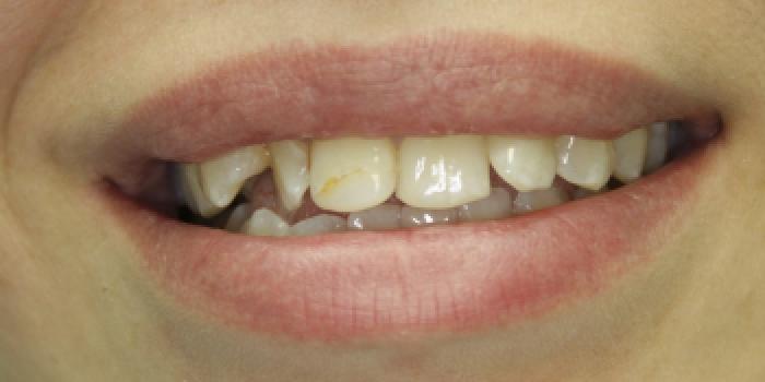 Художественная реставрация и восстановление зубов композитным материалом фото до лечения