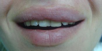 Преображение цвета и формы передних зубов (верхний ряд) фото до лечения