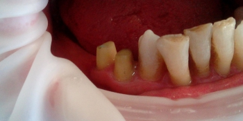 Протезирование металлокерамическими коронками премоляров фото до лечения