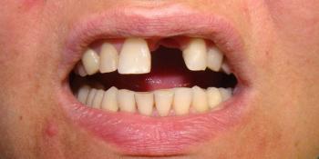 Восстановление центрального резца на верхней челюсти при помощи мк коронкой на импланте фото до лечения