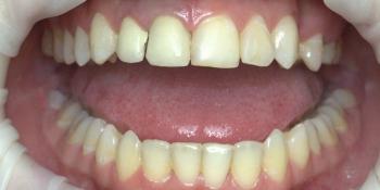 Коронки из диоксида циркония на центральные зубы фото до лечения