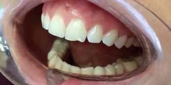 Неинвазивная реставрация скола переднего зуба фото до лечения