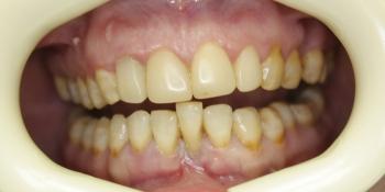 Устранение подвижности зуба фото до лечения
