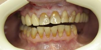 Реставрация передних зубов композитным материалом фото до лечения