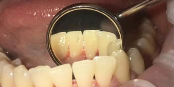 Результат проф чистки зубов фото после лечения