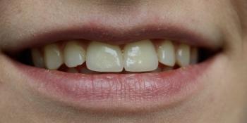 Керамические виниры с закрытием щели между зубами (диастема) фото после лечения