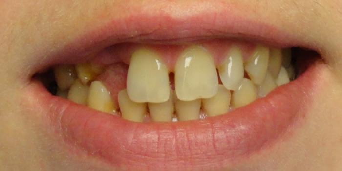 Реставрация зубов, адгезивный мост фото до лечения