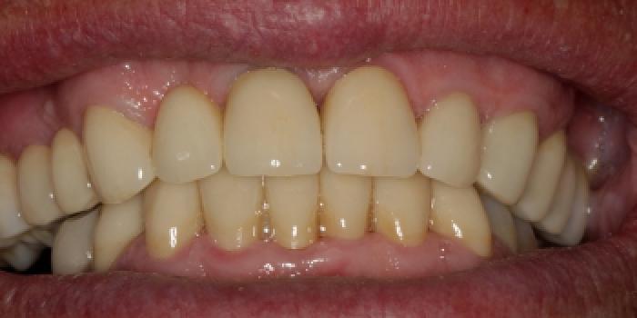Коронки из диоксида циркония, полное лечение фото после лечения
