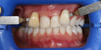 Результат отбеливания зубов системой ZOOM 3 фото после лечения