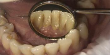 Результат проф чистки зубов фото до лечения