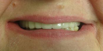 Восстановление отсутствующих зубов несъемным мостовидным протезом фото после лечения
