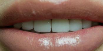 Преображение цвета и формы передних зубов (верхний и нижний ряд) фото после лечения