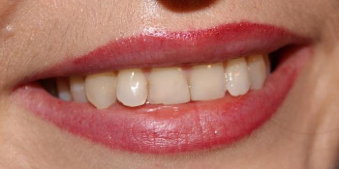 Керамические виниры E.max (импресс керамика) фото до лечения