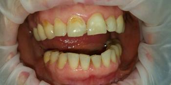 Зубы восстановили композитным реставрационным материалом Estelite фото до лечения